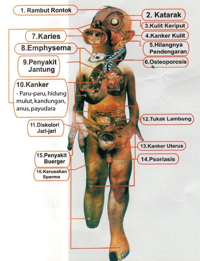 bahaya merokok 1 jpg