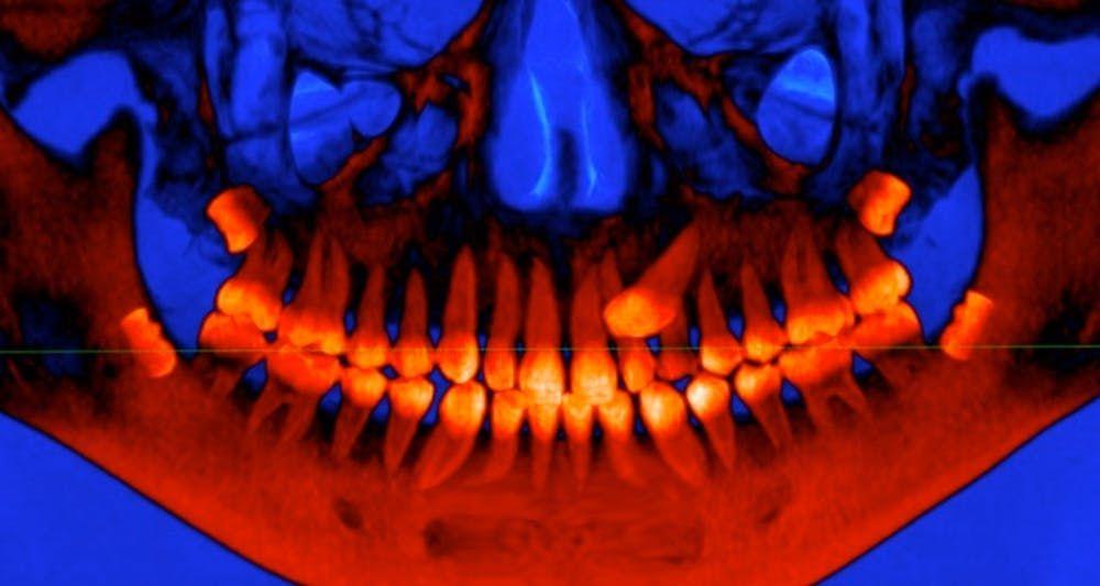 Contoh Teka Teki Gigi Yang Hebat Untuk Para Ibubapa